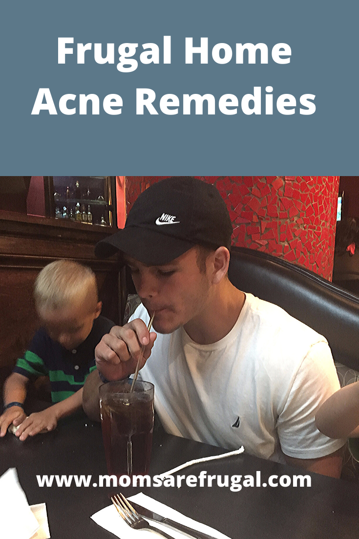 Frugal Home Acne Remedies