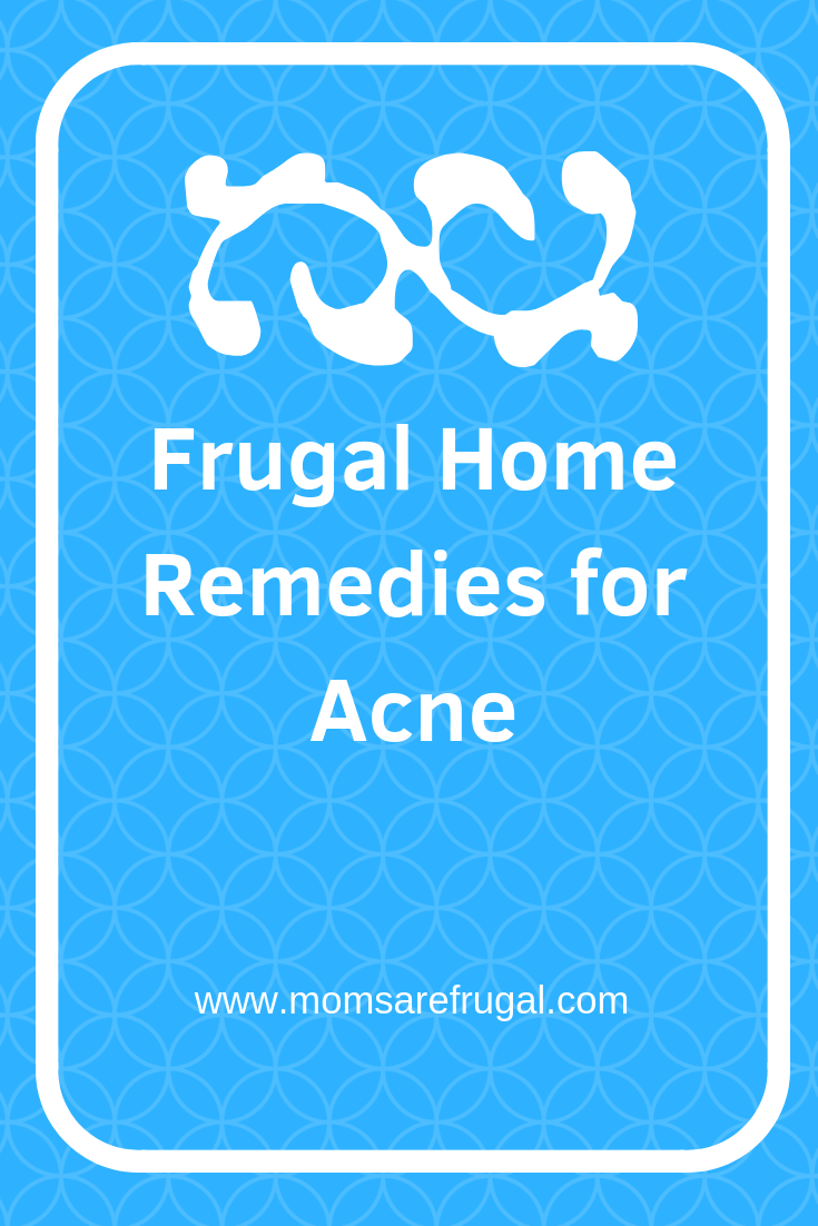 Frugal Home Remedies for Acne